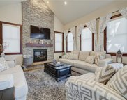 308 French Unit 2, Breckenridge image